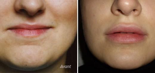 augmentation-des-lèvres-avant_après